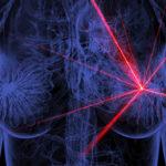 Investigadores argentinos desarrollaron un mamógrafo que trabaja sin rayos: adiós a la punción y el dolor